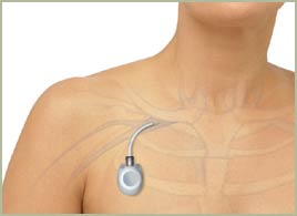 Catéter totalmente implantável para quimioterapia - porth-a-cath